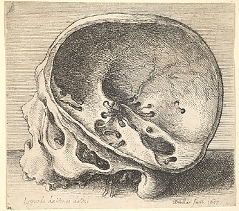 Inner Aspects of the Human Skull
