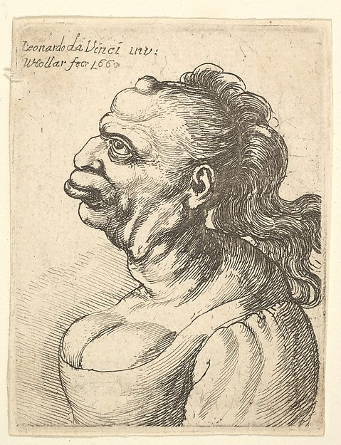 This is What Leonardo da Vinci and Bust of a woman wearing low-cut dress with protruding lipd growth on her forehead prominent breas Looked Like  in 1660
