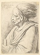 Profile of Old Man with Deformed Upper Lip and Wig
