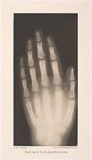 Hand eines 8 jährigen Mädchens