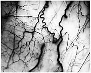 [Detail of Veins in Human Eyeball]