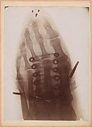 [X-Ray of a Foot Inside a Shoe]