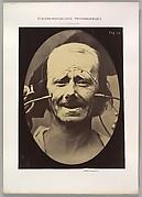 Figure 34: Grimace