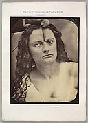 Figure 81: Lady Macbeth, moderate expression of cruelty