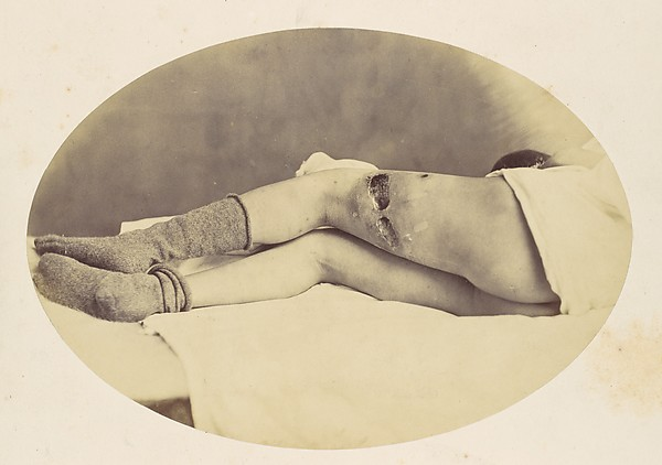 Judson C. Albright, Reed Brockway Bontecou (American, 1824–1907), Albumen silver print from glass negative