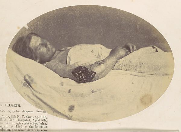 Frederick Pilgrim, Reed Brockway Bontecou (American, 1824–1907), Albumen silver print from glass negative