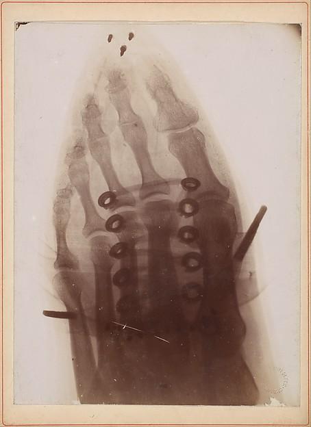 Le pied à travers la chaussure, Dr. Henri van Heurck (Belgian, 1838–1909), Gelatin silver print