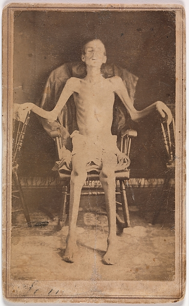 Emaciated Union Soldier Liberated from Andersonville Prison, J. W. Jones (American, active Orange, Massachusetts, 1860s), Albumen silver print from glass negative